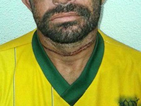 Sobrevivente ficou com marca de sufocamento no pescoço (Foto: PM/Divulgação)
